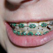Endodontie Obor