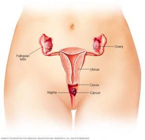 cauze cancer vaginal